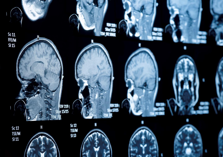Reti neurali. Il paradosso della neuroscienza computazionale